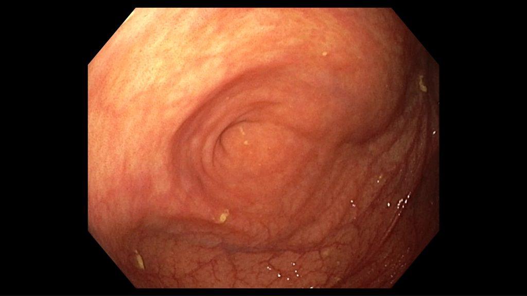 orificio apendicular colonoscopia