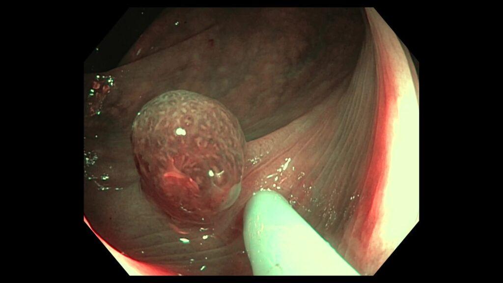 Polipo de colon inflamatorio