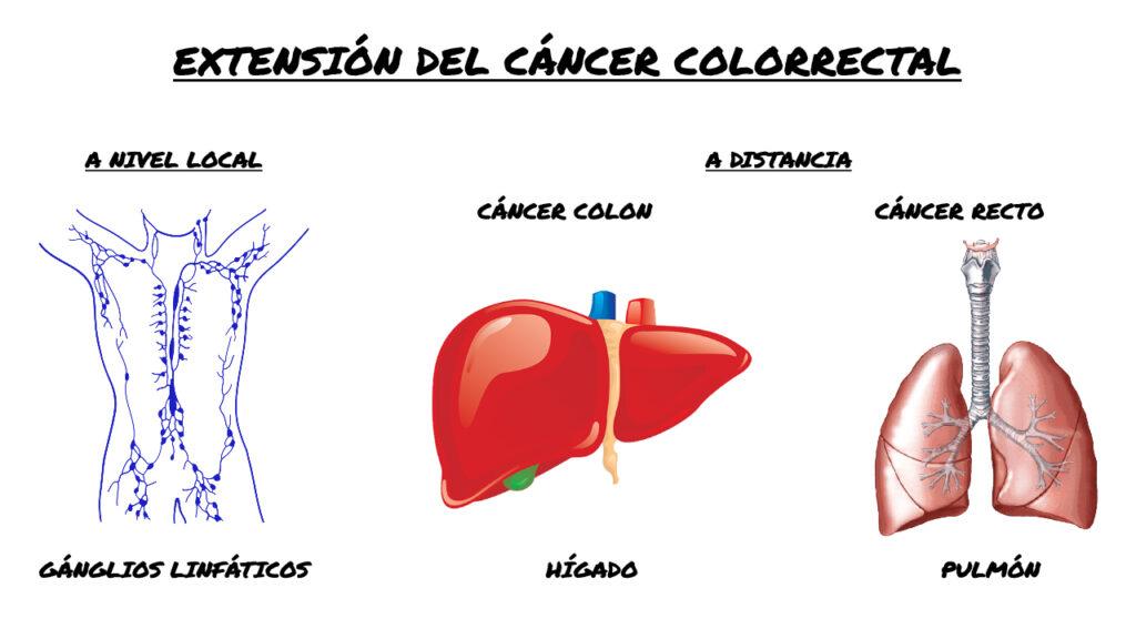 Metástasis cáncer colorrectal