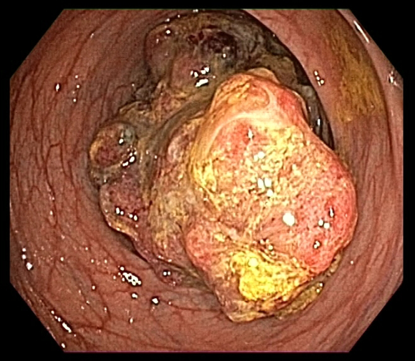 Neoplasia obstructiva colon