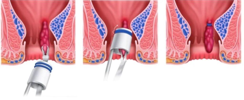 ligadura bandas hemorroides