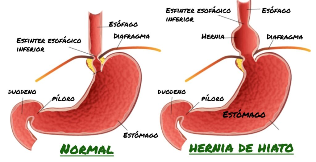 unión gastroesofágica hernia hiato